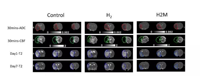 氢气改善脑缺血的最新研究